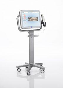 Align itero scanner